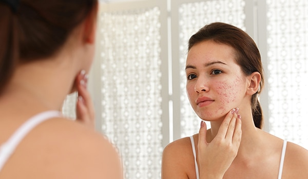 The 3 major types of acne, and how to deal with them