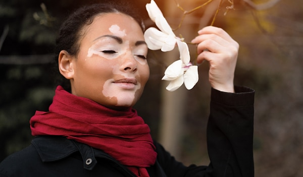 12 Home Remedies For Treating White Patches On Face