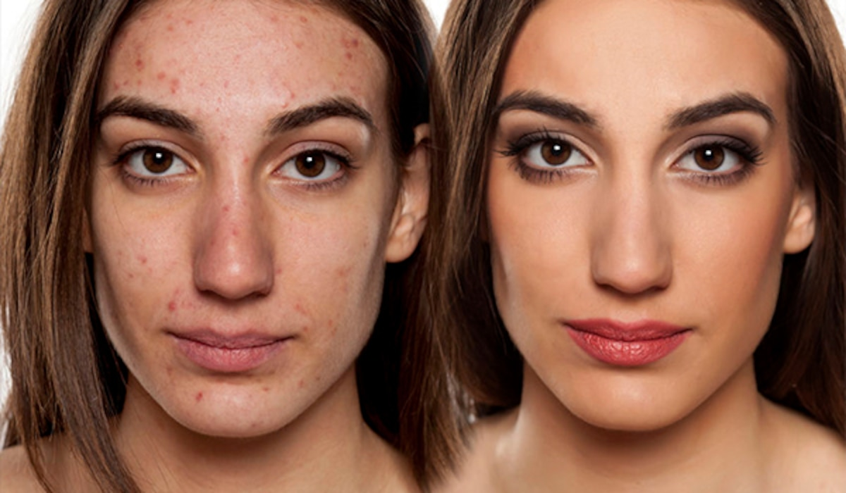 Acne Scars With Makeup