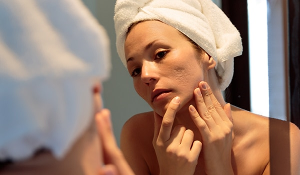 5 effective ways to get rid of facial scars once and for all