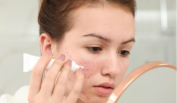 5 things to keep in mind when using spot treatments