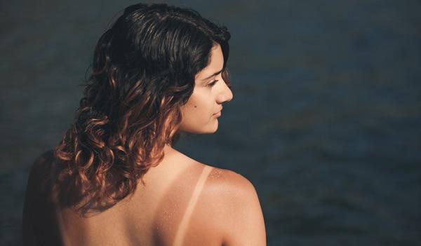 गर्मियों में ज़िद्दी टैन लाइंस से कैसे पाएं छुटकारा