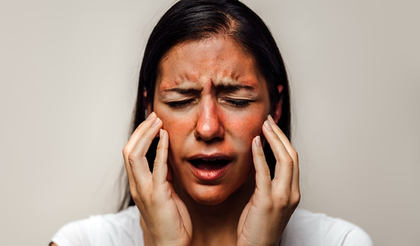 Eczema on Face: All you Need to Know