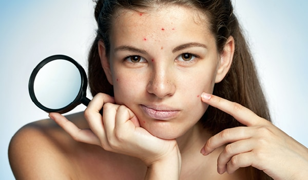 An expert tells you everything you need to know about skin blemishes