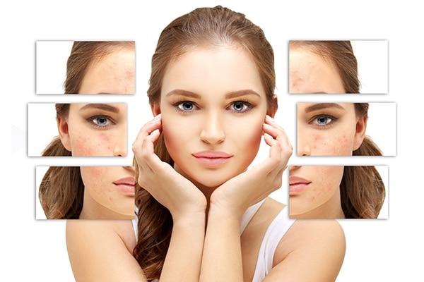 _yashasvi_jain_: How can I get rid of my acne scars?
