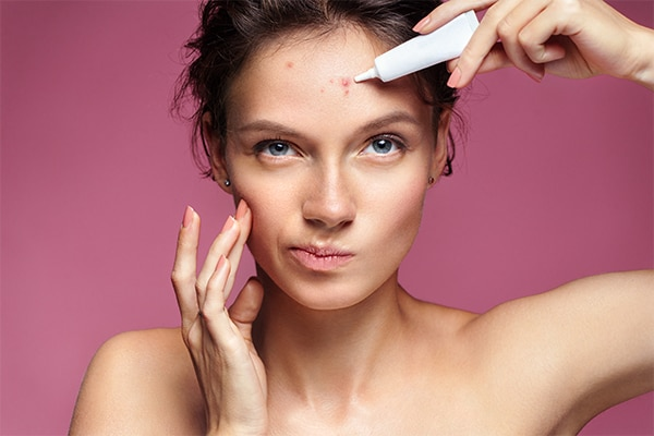Use probiotic skincare to prevent acne