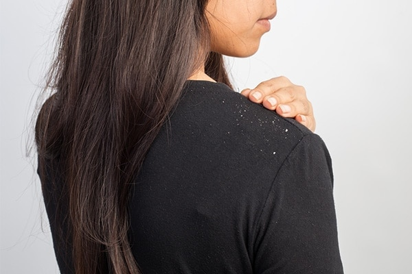 5.	Treatment of dandruff
