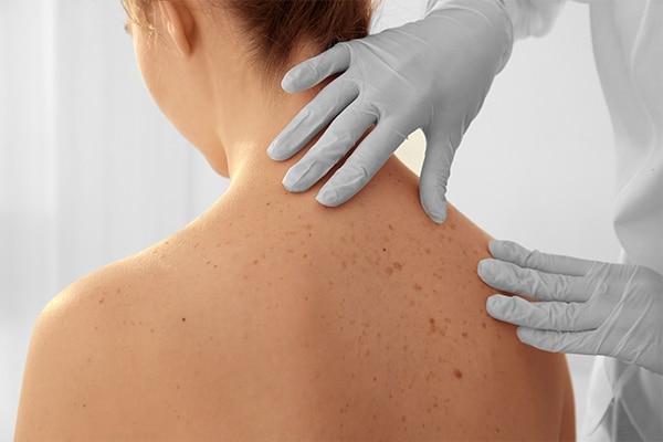 Decreases risk of skin cancer