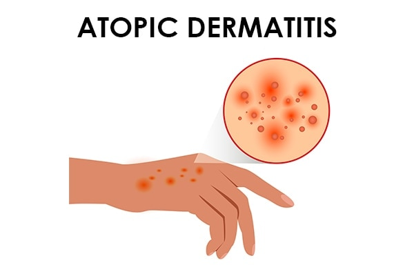 Causes of dry skin Is it your lifestyle or an underlying chronic disease