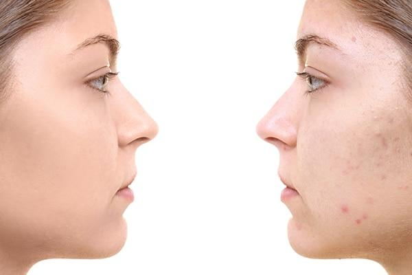 Prevents acne