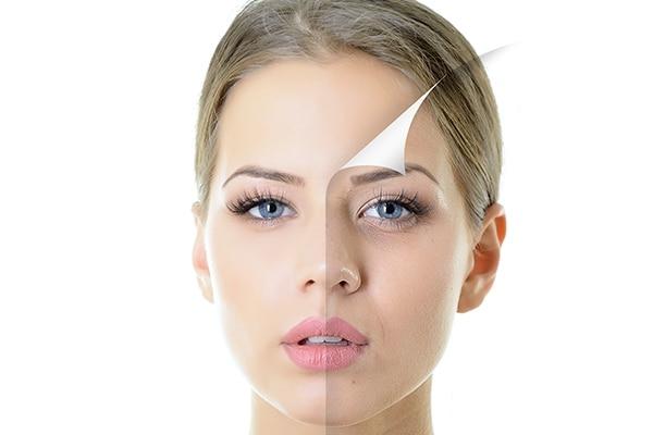 Heals skin, naturally