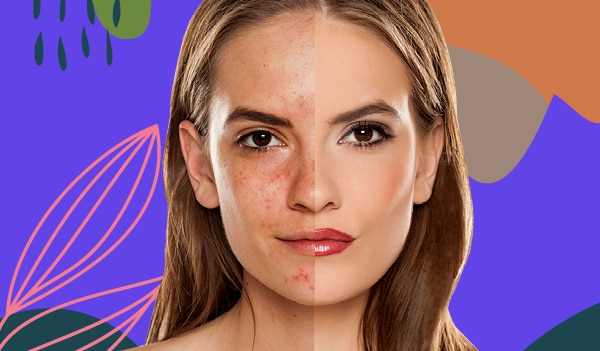 How to cover blemishes with makeup in 5 simple steps