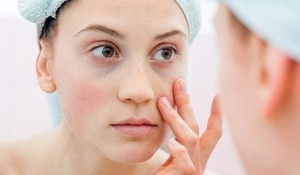 How to prevent and treat dark circles