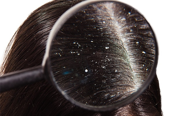 How To Dealing With Oily Dandruff