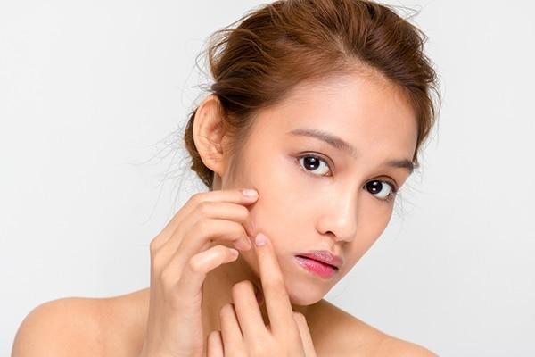 Treats acne