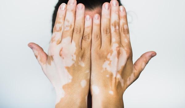 what is Vitiligo and best vitiligo treatments