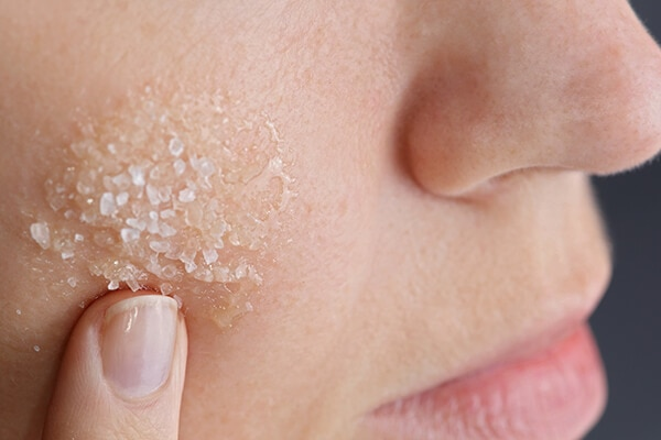 Exfoliation can be the route to prevention