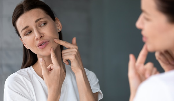 A Dermatologist's Guide on Treating Jawline Acne
