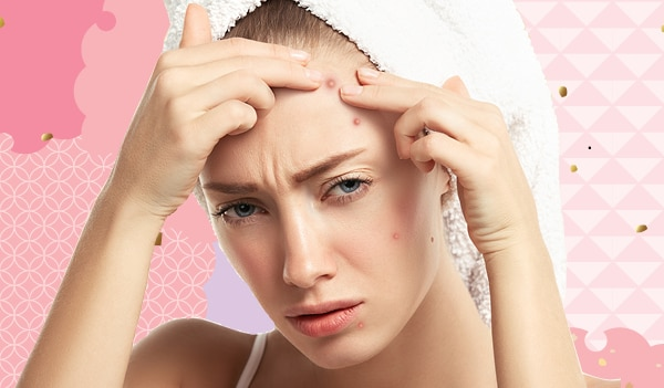 Expert recommended tips to get rid of pimples on the forehead