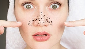 Homemade face masks to reduce blackheads and whiteheads