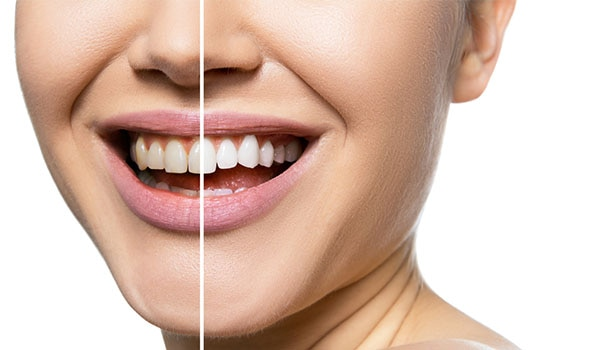 Say cheese: 5 natural ways to get brighter teeth