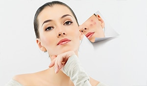 Got sensitive, acne-prone skin? Skin expert Dr. Mrunal Shah Modi tells you how to care for it...
