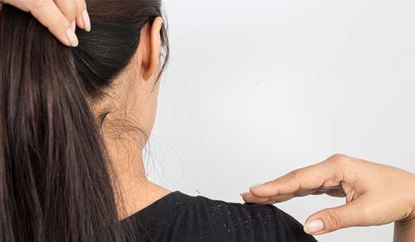 Home Remedies For Dandruff That You Should Try