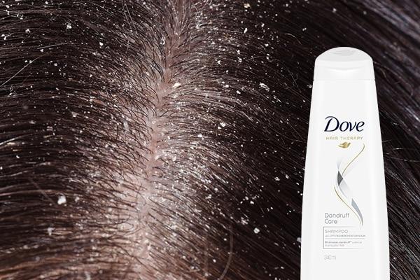 Flaky scalp and dandruff