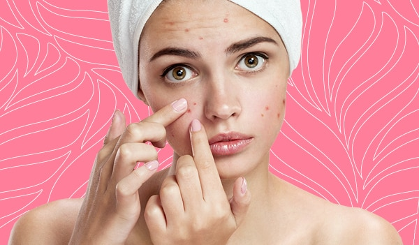 An expert's guide on how to deal with PCOS related skin and hair issues