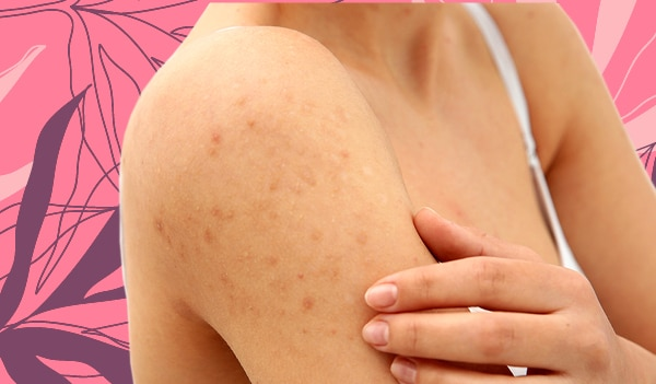 How to get rid of acne on your arms
