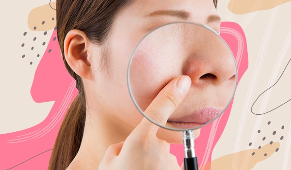 How to deal with redness around the nose