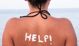 Itchy sunburn got you down? Here is what you can do to treat it