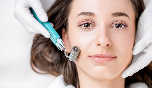 Microneedling 101: Here's everything you need to know about this facial treatment