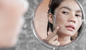 How to Remove Spots From Your Face in 2 Days Naturally?