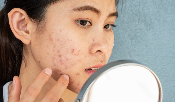 What is nodular acne and how to treat it