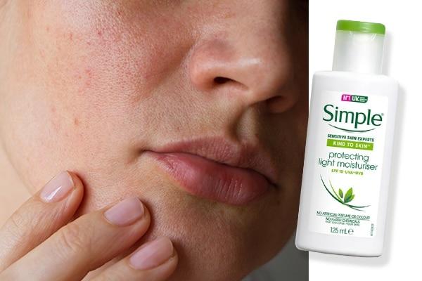 Anti-allergens