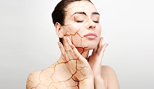 5 ways to care for dry skin during monsoon