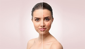 Home Remedies For Blemishes And Acne