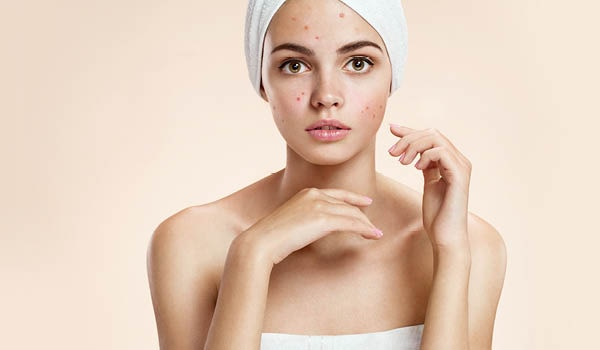 5 skincare mistakes that aggravate acne