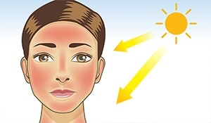 Prepping for summer: how to effectively treat nasty sunburns