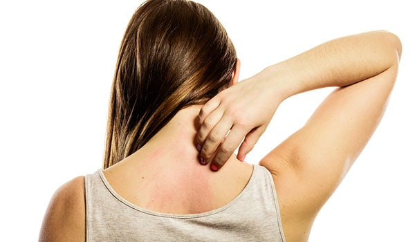 How To Stop Rashes From Increasing!