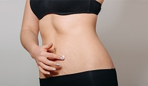 4 home remedies to prevent stretch marks