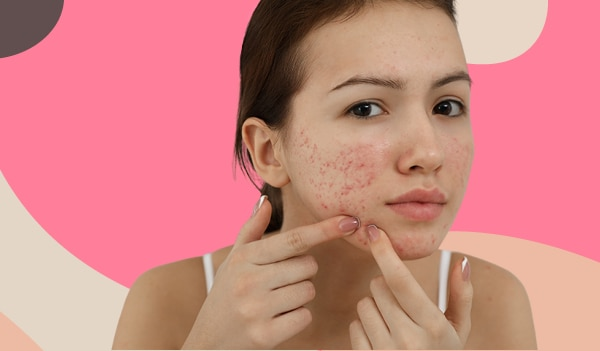 What are pitted acne scars, and how to get rid of them