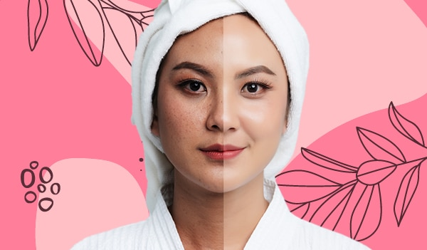 This is the only skincare routine you need to follow to get rid of dark spots