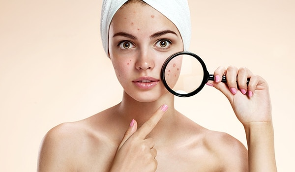 This is how salicylic acid helps drive away acne