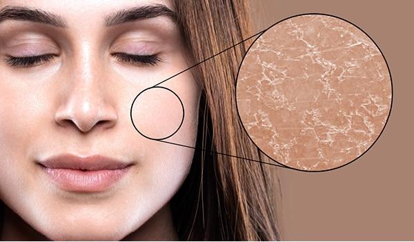 Treat dehydrated skin to reveal the flawless skin beneath