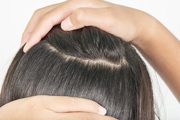 Say goodbye to dandruff