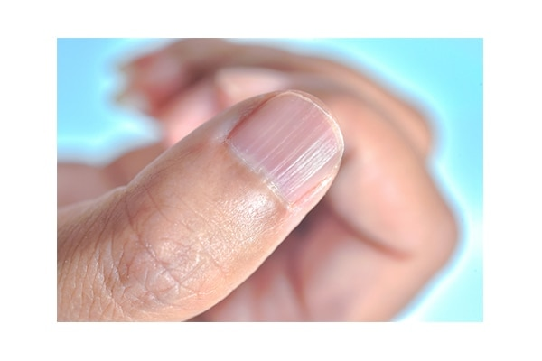 What are your nails trying to tell you