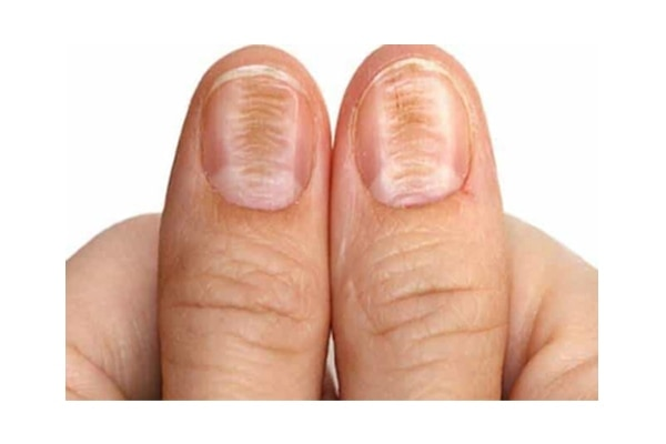 5 Things That Your Nails Are Trying to Tell You