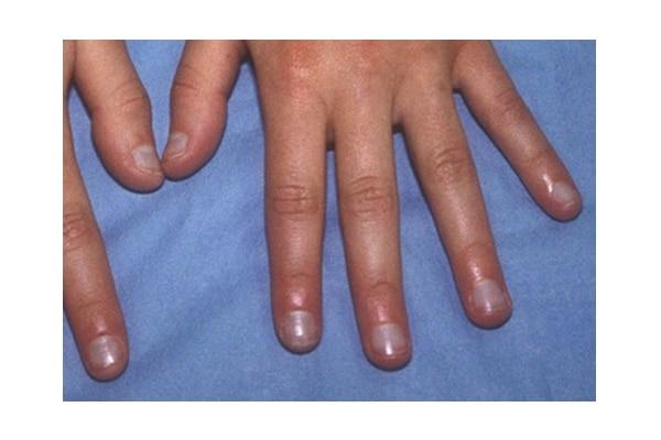 5. Bluish Nails